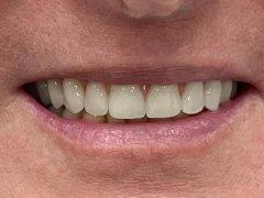 Teljes felső fogsor rehabilitációja implantátumokkal