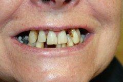 A fogak a beavatkozás előtt.