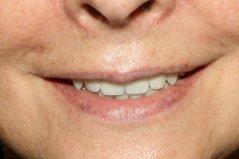 A fogak a beavatkozás után.