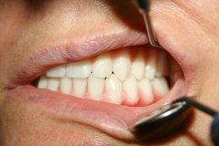 Tökéletesen illeszkedő esztétikus, rögzített fogsor a beavatkozás után.