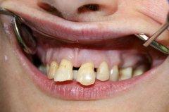 A fogak eredeti állapota