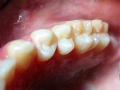 A bal felső ekső kisörlő a fogorvosi kezelés után