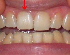 Belső fogfehérítés