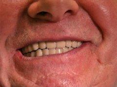 Új, beültetett fogsor